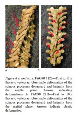 "Figure 8 of ""Effects of Long Term Corseting on the Female Skeleton"", showing the thoracic vertebral alignment and overlapping processes."